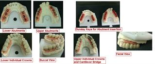 Abutments and Crowns