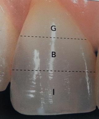 Gingival, Body, Incisal